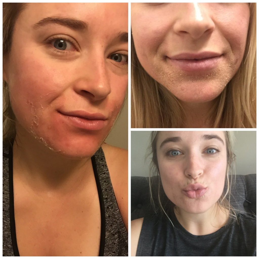 skincarecollage