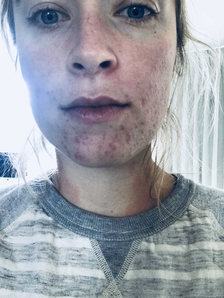 LIVING WITH ECZEMA & CHRONIC HIVES  | The Balanced Blonde